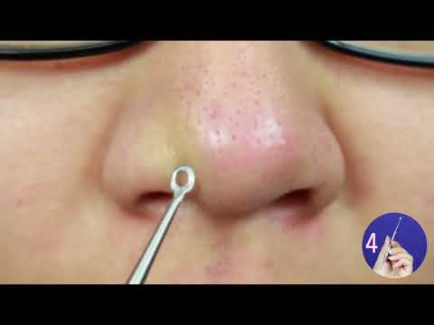$10 AMAZON Blackhead Tools REALLY WORK!!